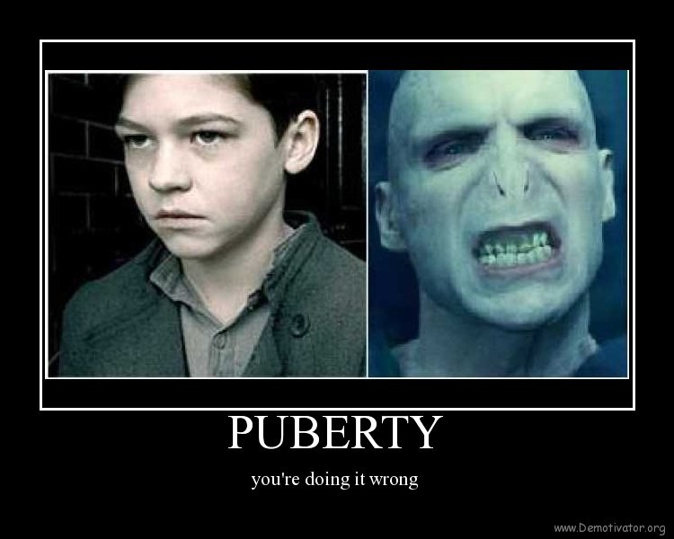 This could have worked out better-12 Photos That Show Puberty Doing It Wrong