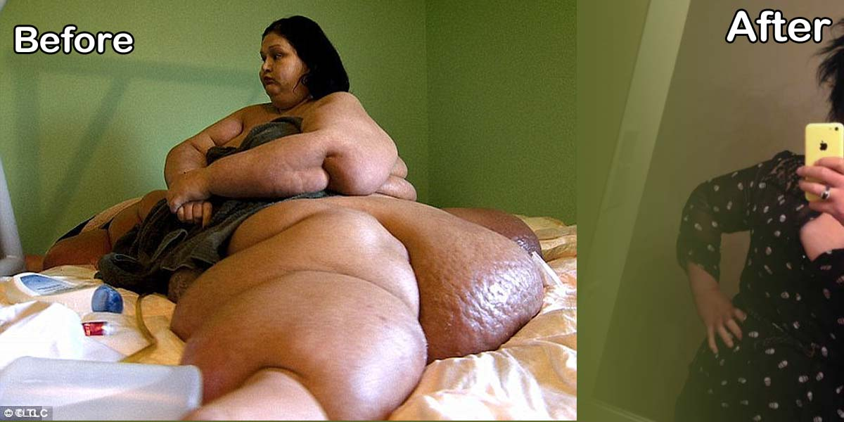 15 Images That Show Incredible Transformation of a Woman Weighing Over 1000 Pounds