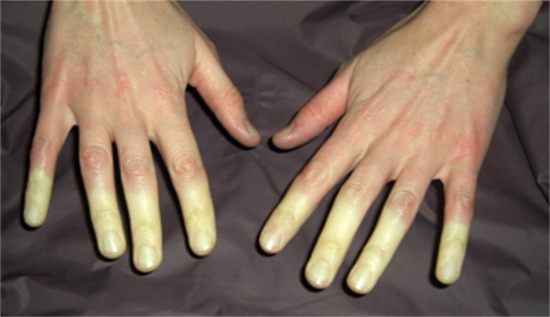 It Doesn't Feel Great Either-15 Things Only People With Raynaud's Will Understand