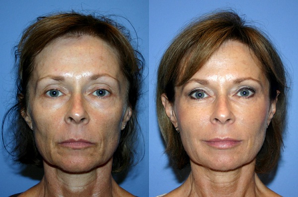 Face lift-Most Expensive Plastic Surgeries In The World
