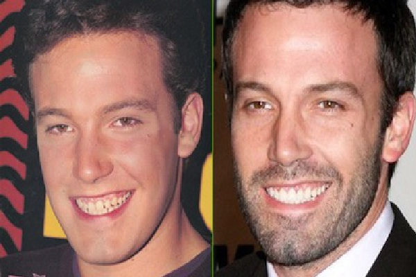 Ben There Done That-Celebrities Who Have Fixed Their Teeth