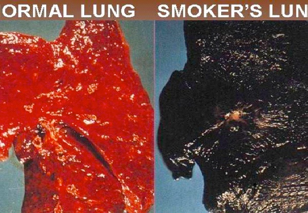 Post A Picture Of Smoke Damaged Lungs On Your Home Screen-How To Quit Smoking