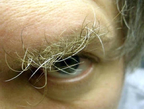 Bushy Brows-Disgusting Eyebrows Ever