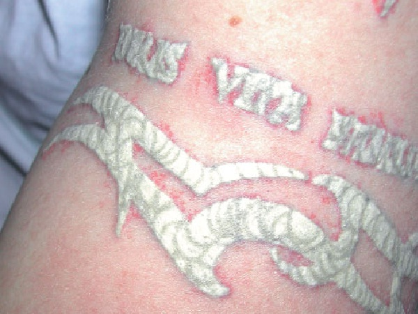Who knows?-Tattoo Removal Disasters