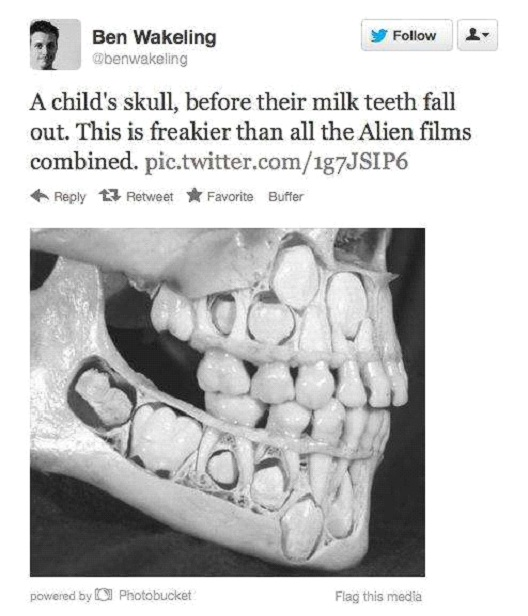 Child's Skull Before Milk Teeth Fall Out-Worst Nightmares For Trypophobics(Fear Of Holes)