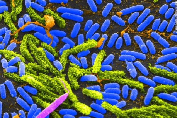 Cholera-Worst Diseases