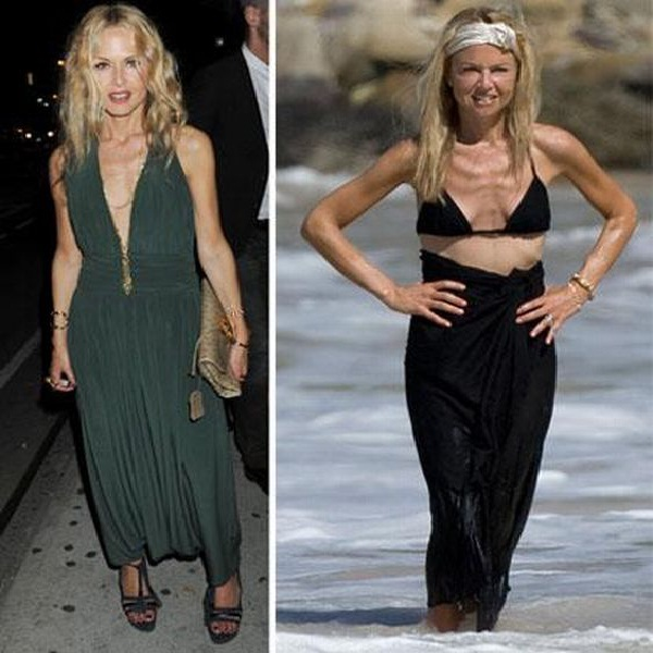 Rachel Zoe-Celebs Who Lost Weight