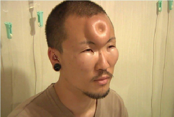 Forehead implant-Bizarre Body Modification Implants