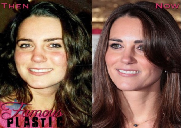 Princess Of Surgery-Celebrities Who Have Fixed Their Teeth