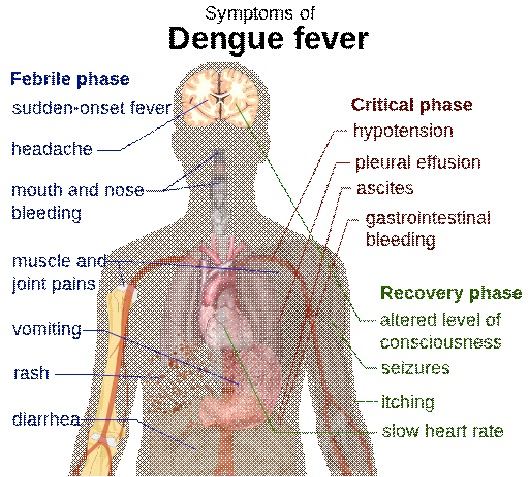 Dengue Fever-Most Dangerous Viruses In The World Today