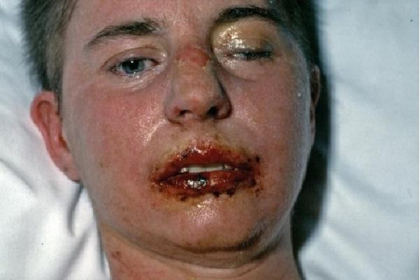 Stevens - Johnson syndrome-Worst Prescription Drugs Side Effects