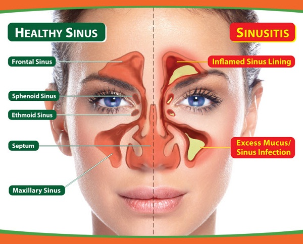 Sinuses-Vestigial Human Body Parts You Didn't Know