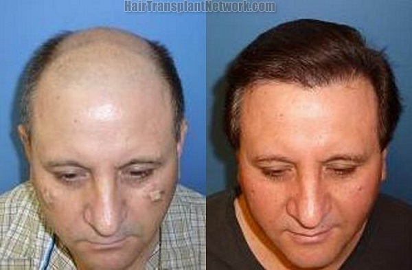 Hair Implants-Most Expensive Plastic Surgeries In The World