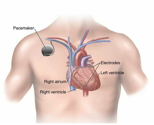 Pacemaker-Most Expensive Surgeries In The World