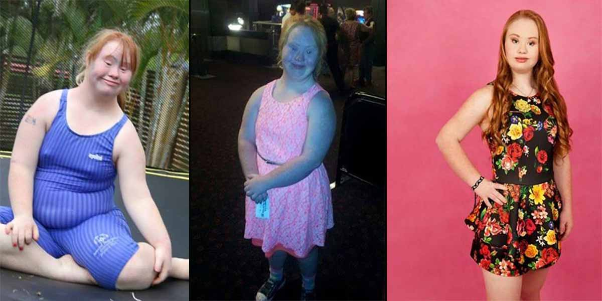 Meet Madeline, a Teen Model with Down syndrome