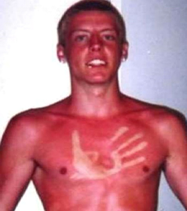 Talk to The Hand-Amazing Sunburn Art
