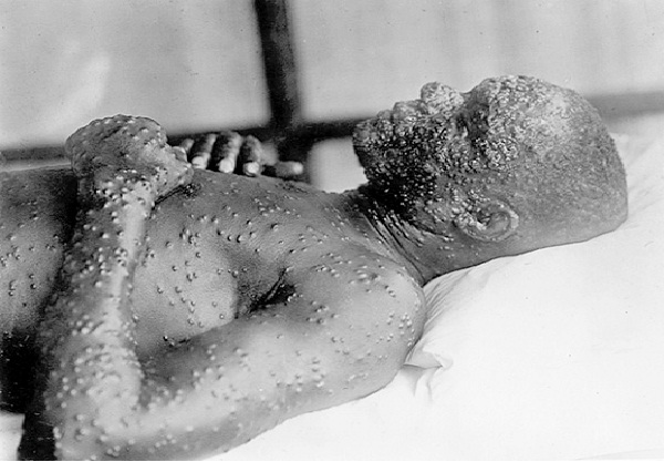 Small Pox-Worst Diseases