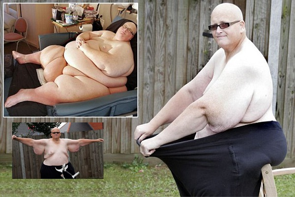 Before & After-Transformation Photos Of The Fattest Man In The World