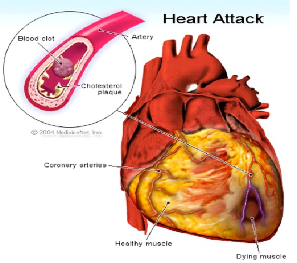 Heart Disease-Bad Things Which Are Genetic