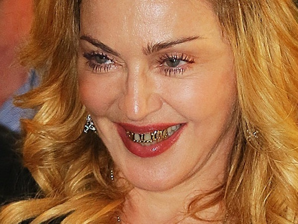 Madonna Grills The Public-Celebrities Who Have Fixed Their Teeth