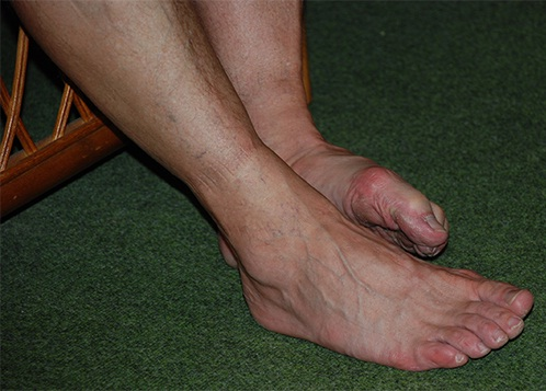 Sore Feet-24 Signs That You Are Fat