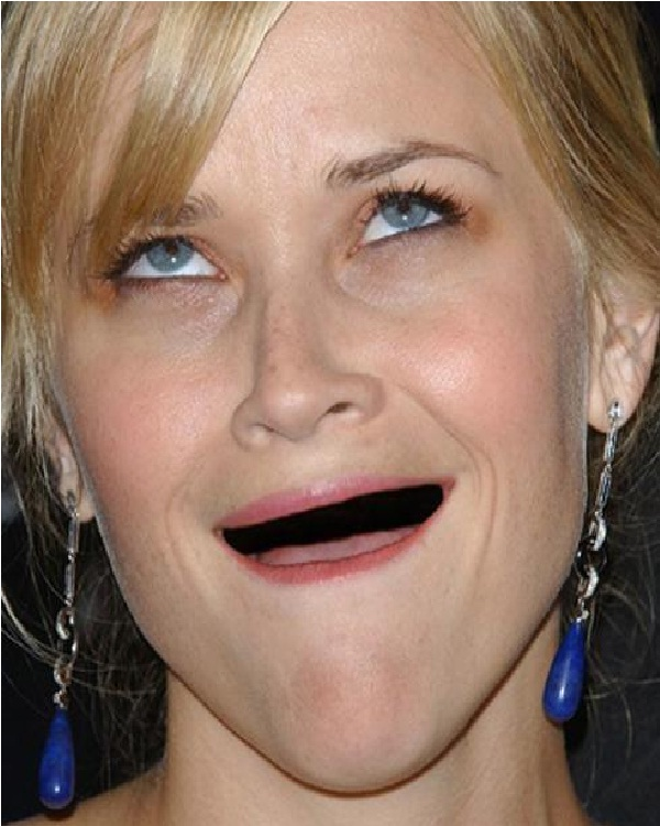 Reese Witherspoon-Celebs Without Teeth
