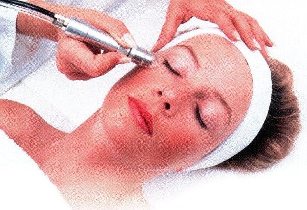 Microdermabrasion-Top 15 Tips For Getting Rid Of Pimples Forever