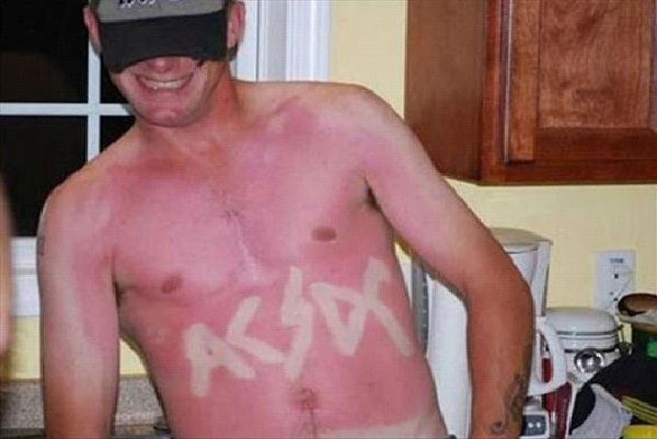 Rockin Out-Amazing Sunburn Art