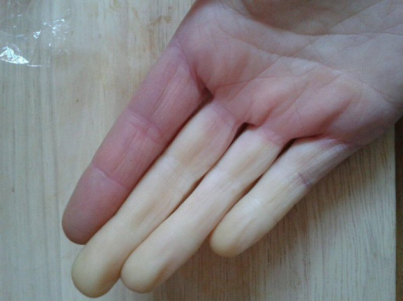You Have to Deal with This More Often-15 Things Only People With Raynaud's Will Understand