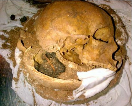 Human Skull-Craziest Things Found By Airport Security