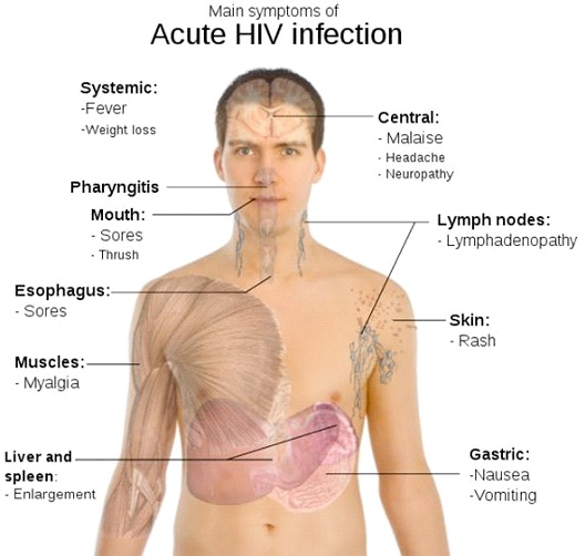 HIV-Most Dangerous Viruses In The World Today