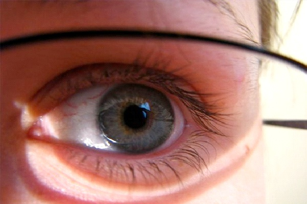 Vision Problems-Bad Things Which Are Genetic