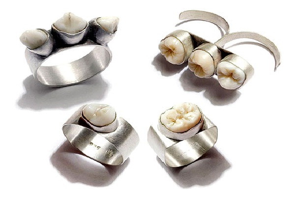 As Rare as Hens Teeth-Wackiest Rings To Wear
