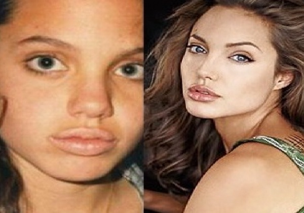 Angelina Jolie-12 Celebrities Who Looked Ugly When They Were Kids