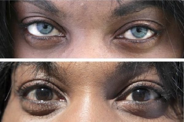 Eye implants-Bizarre New Types Of Cosmetic Surgery