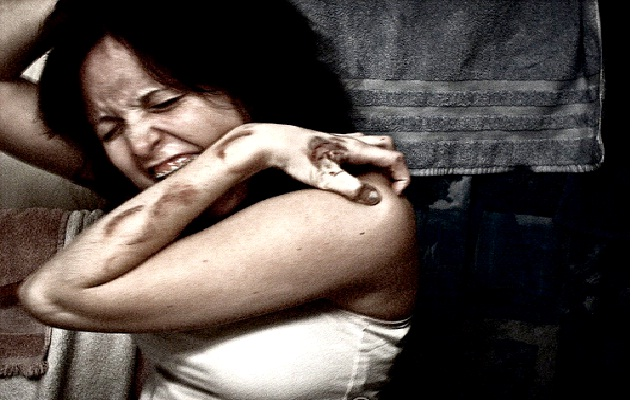 Authophagia-Weird Psychological Disorders
