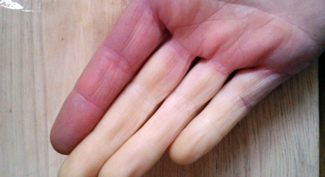 15 Things Only People With Raynaud's will Understand