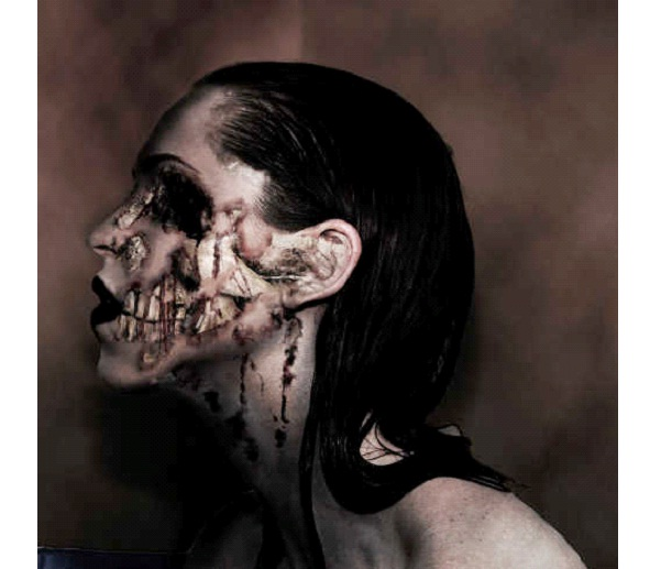 Cotard's Syndrome-Weird Psychological Disorders
