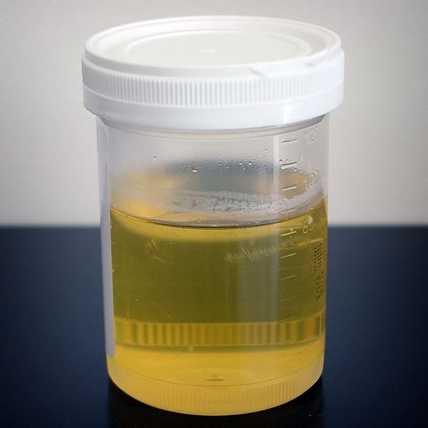 Urine-Weirdest Taxes Ever Collected