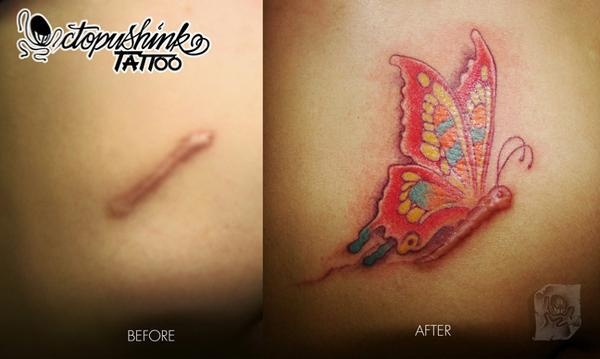 Imagination-Best Tattoos To Cover A Scar