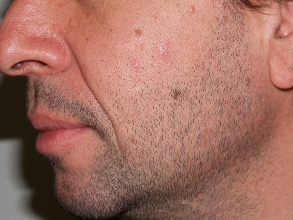 Beard transplant-Bizarre New Types Of Cosmetic Surgery