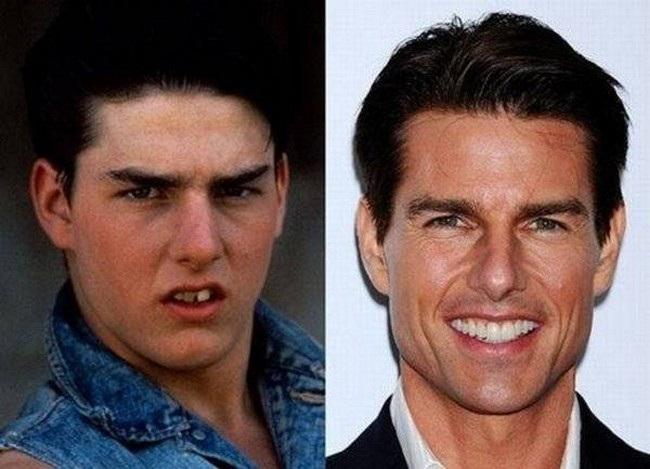 Tom Cruise-12 Celebrities Who Looked Ugly When They Were Kids