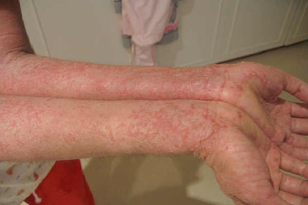 Eczema-Bad Things Which Are Genetic