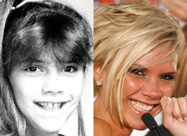 Victoria Has Done It All-Celebrities Who Have Fixed Their Teeth