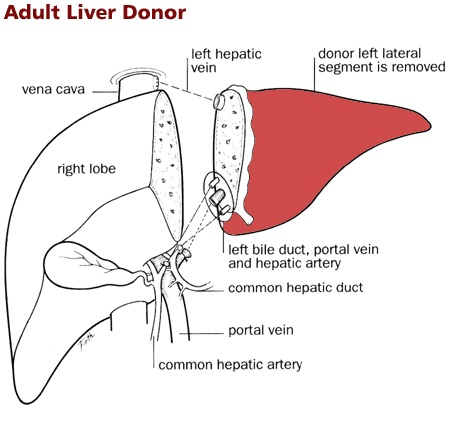 Liver transplant-Most Expensive Surgeries In The World
