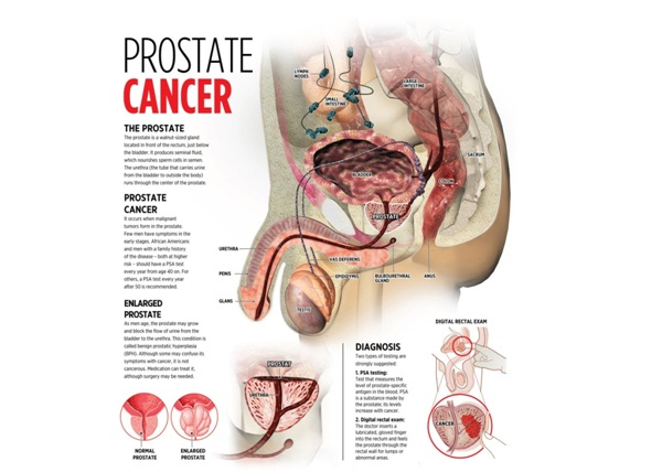 Fights Prostate Cancer-Benefits Of Being Vegan