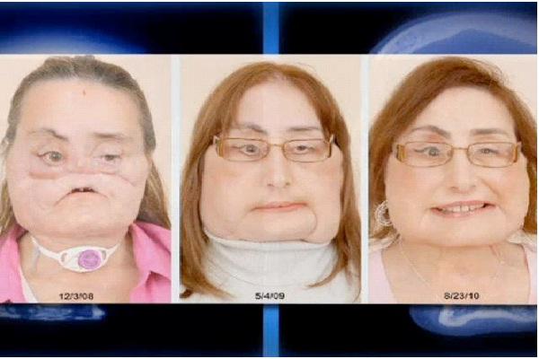 Connie Culp - First Human Face Transplant-Medical Miracles