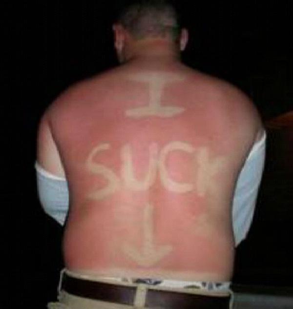 A Sucker Born Every Minute-Amazing Sunburn Art
