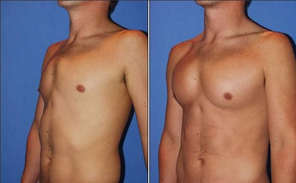 Pec implants-Most Expensive Plastic Surgeries In The World