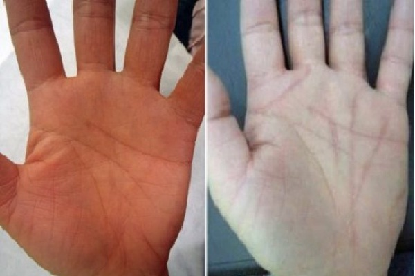 Palm line surgery-Bizarre New Types Of Cosmetic Surgery